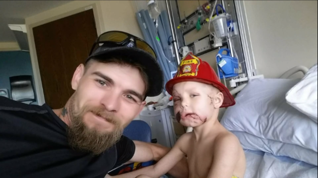 Pit bull attack leaves 4-year-old boy with scars & dad needing answers
